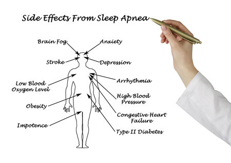 sleep-apnea tyler TX